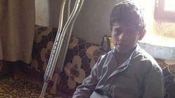 対人地雷禁止:イエメン政府が地雷埋設したと認める