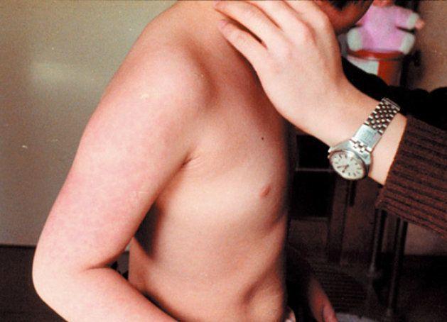 リンゴ病にかかり、発疹が出た患者