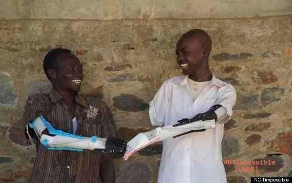 3Dプリンタでつくる100ドルの義手、スーダン内戦の肢切断患者の希望に