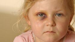 児童虐待の現場を見た