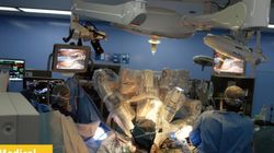 年間50万件以上 世界に広がるロボット手術