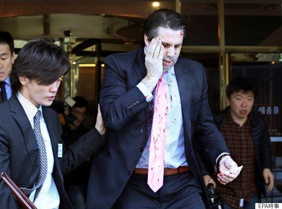 【駐韓米大使襲撃】容疑者の男、日本大使にセメント片投げた前科