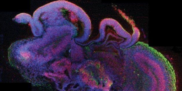 iPS細胞から「小さい脳」を作成