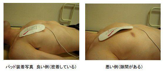 AEDを「女性に使ったら痴漢で事情聴取」