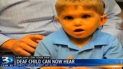 聴覚障害の3歳児、「聴性脳幹インプラント」が成功
