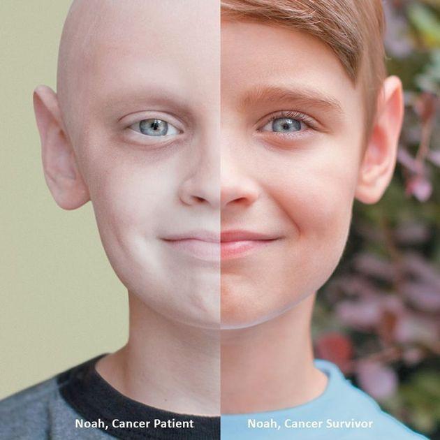 白血病に襲われ、闘った少年、ノアの写真が心をつかむ
