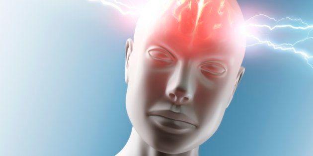 脳梗塞の悪化抑える物質、大阪大など発見 新薬開発の可能性も