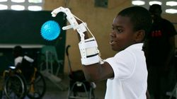 指のないハイチ少年に「手」をプレゼント