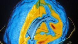 「植物状態」患者と意思疎通に成功:脳スキャンを活用