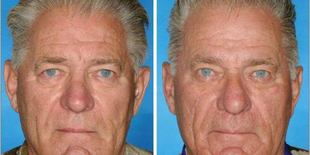 喫煙すると 顔の老化 が進む証拠写真 ハフポスト