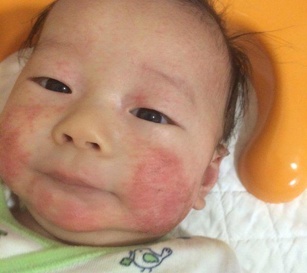 アレルギーで発疹が目立つ赤ちゃん