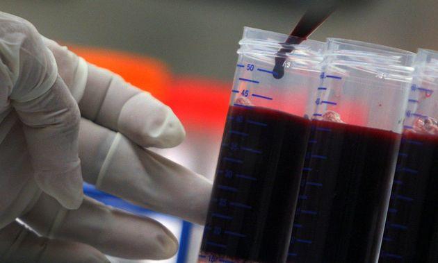 «Ελιξήρια νεότητας» με αίμα από νέους ανθρώπους: Απάτη από τσαρλατάνους