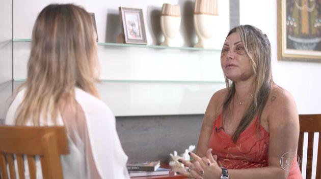 """Nas imagens da reportagem, a empresária aparece com o rosto ainda muito machucado e com hematomas.""""Eu..."""