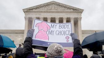 "A pro-abortion rights supporter holds up a sign that reads ""My Body. My Choice"" during a rally outside the Supreme Court in Washington, Tuesday, March 20, 2018, as the Supreme Court hears arguments in a free speech fight over California's attempt to regulate anti-abortion crisis pregnancy centers. (AP Photo/Andrew Harnik)"