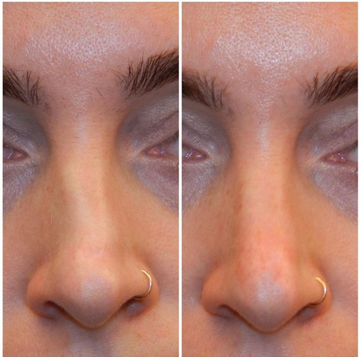 A before-and-after image of an individual who underwent non-surgical rhinoplasty to straighten the nose.