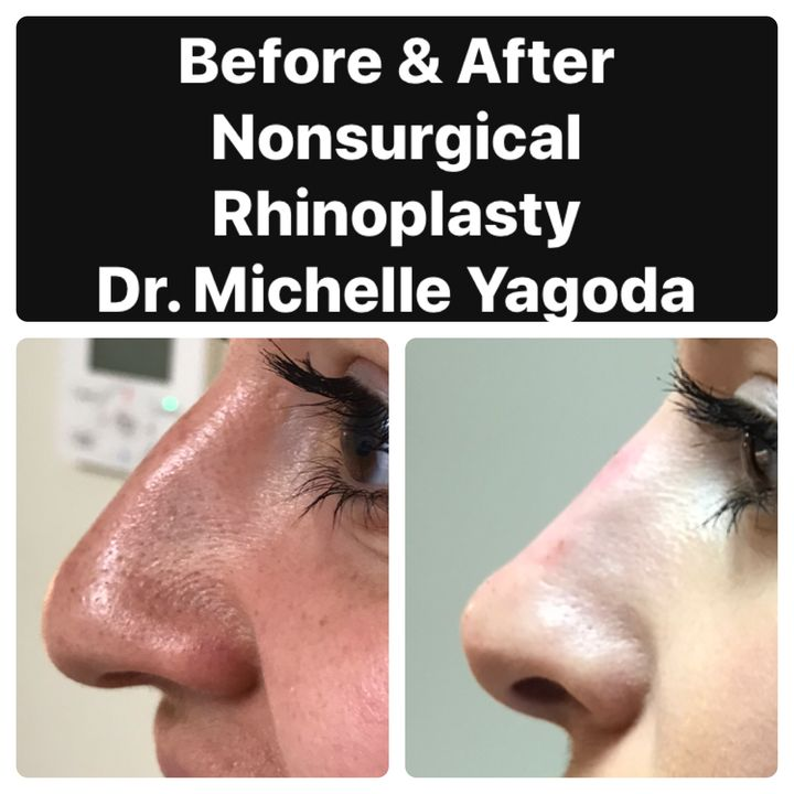 Liquid Nose Jobs: Everything To Know About Nonsurgical Rhinoplasty