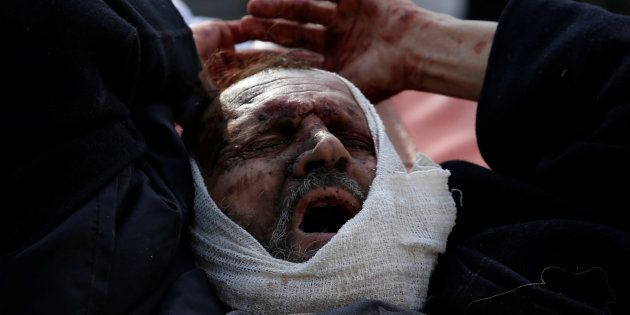 An injured man arrives outside the hospital after a blast in Kabul, Afghanistan January 27,