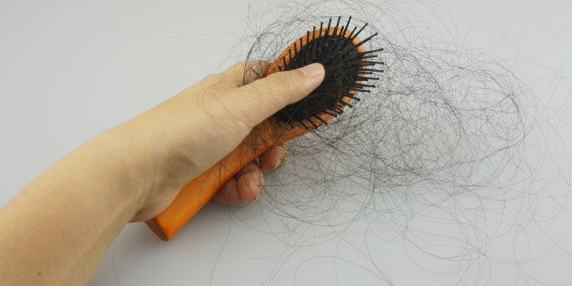 Hair Loss Is A Real Side Effect Of Some Of These Hair Treatments