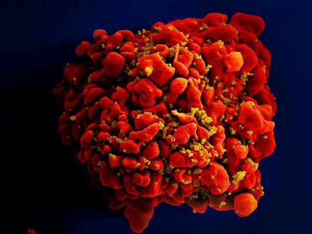 """""""Não existe vírus ali que consigamos medir. Não conseguimos detectar nada"""",..."""