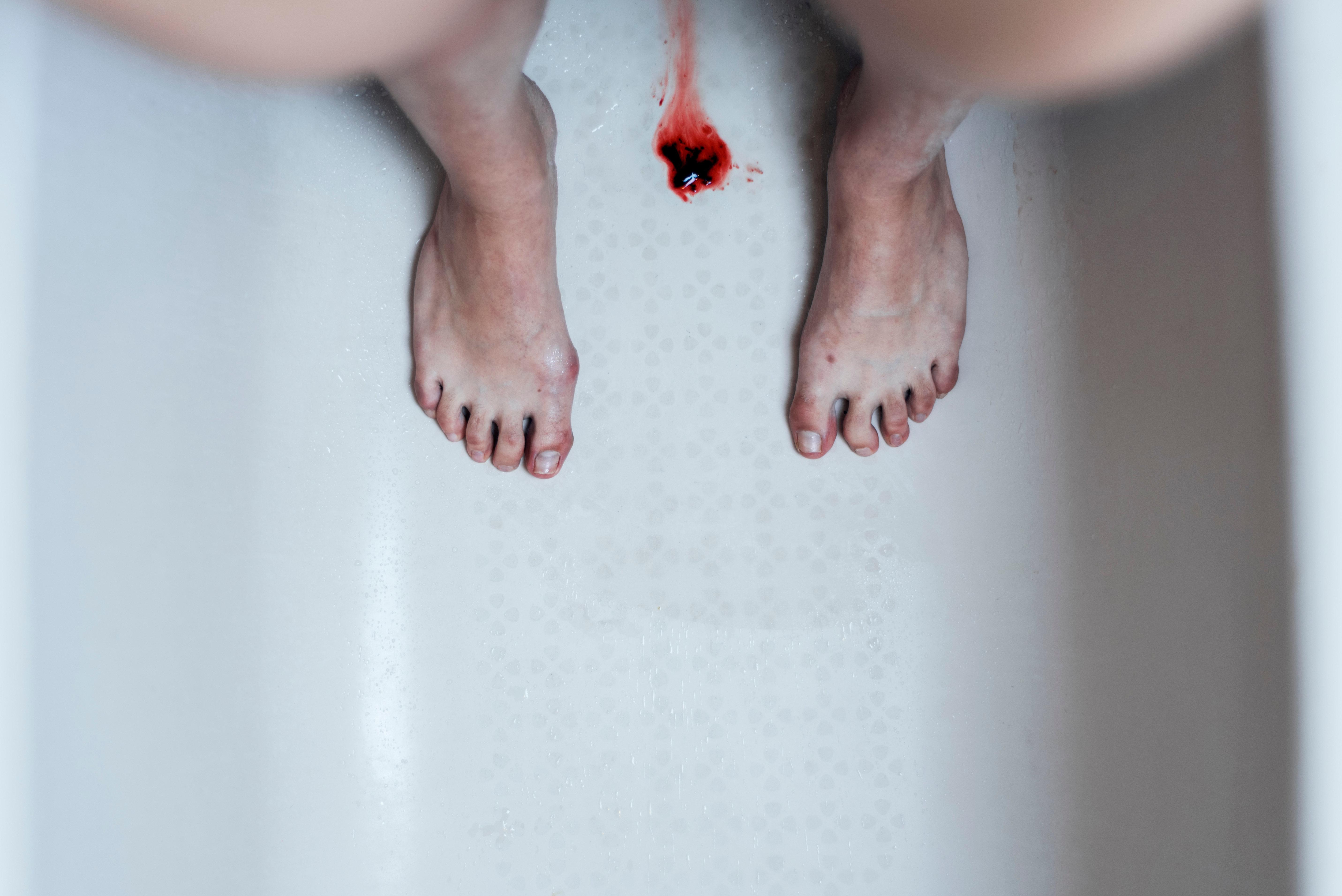 Die Menstruation ist immer noch ein