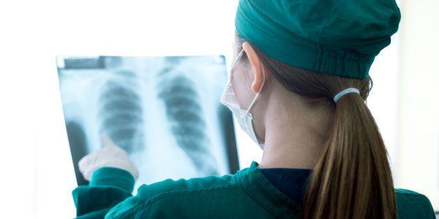 Una doctora revisa una placa de pulmones, en una imagen de
