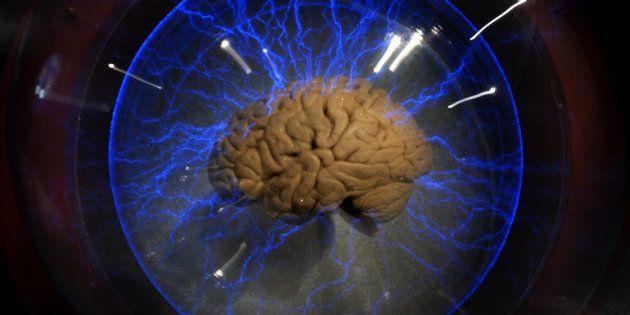 Usar el cerebro es el mejor modo de prevenir enfermedades