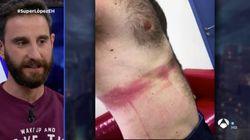 Dani Rovira muestra las heridas que sufrió en su último