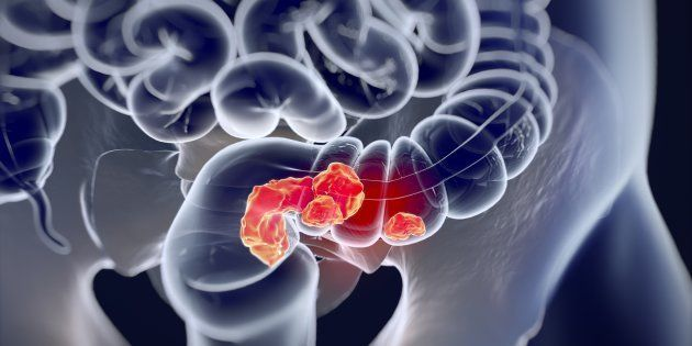 Investigadores del CNIO sugieren la relación entre el consumo de proteínas y el desarrollo de cáncer