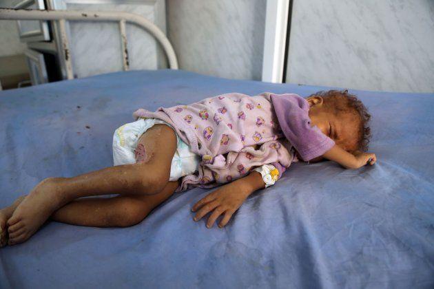Una niña yemení malnutrida recibe tratamiento en un hospital de Al Hudayda el 19 de diciembre de