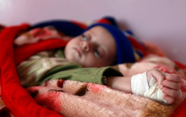 A malnourished child rests at a therapeutic feeding centre at al-Sabyeen hospital in Sanaa February 13,...