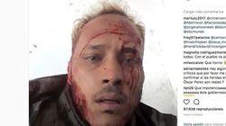 La policía venezolana acorrala a Óscar Pérez, el policía que atacó desde un helicóptero el Tribunal