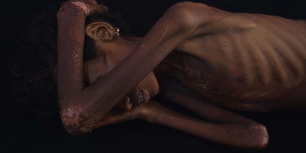 Una niña desnutrida en