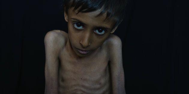 Jaqoob, un niño yemení de ocho años, con malnutrición severa, fotografiado en el Hospital Al Sadaqah...