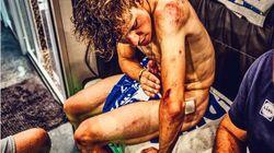 La impactante imagen del cuerpo de este ciclista tras 9 etapas de