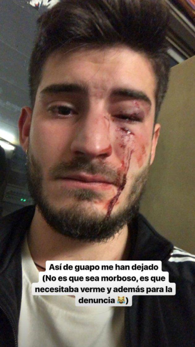 Joven agredido en el metro de