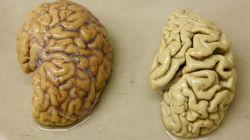 Un fármaco detiene o ralentiza el alzheimer si se administra antes de los síntomas de la