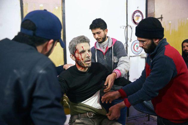 Un herido por los bombardeos en la localidad de Duma, en el enclave asediado de Guta