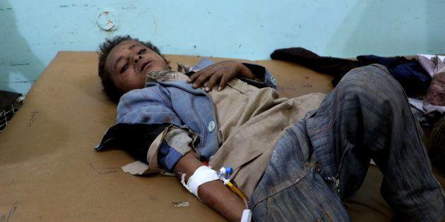 Un niño yemení, recibiendo asistencia tras el ataque de