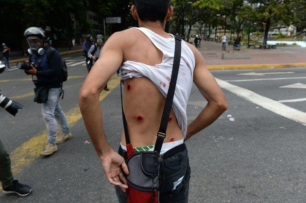 Un manifestante herido, opuesto al gobierno de Nicolás Maduro, muestra su espalda en el marco de los...