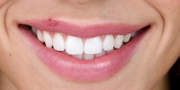 Como eliminar el herpes bucal