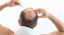 Los tratamientos para no quedarse calvo defraudan a 7 de cada 10