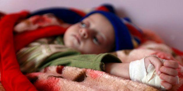 Un niño malnutrido recibe tratamiento en el hospital Al-Sabyeen de Sanaa, la capital de Yemen, en una...