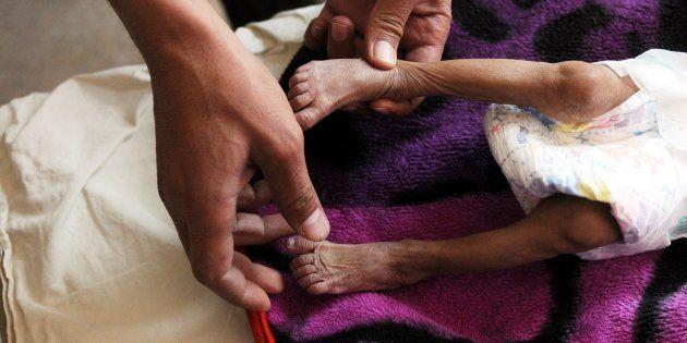 Un bebé malnutrido recibe tratamiento en el Sabeen Maternal Hospital de Sanaa, Yemen, el pasado 20 de