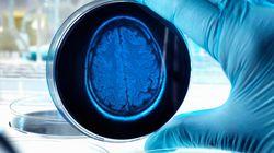 ¿Son las células inmunes del cerebro las que causan el