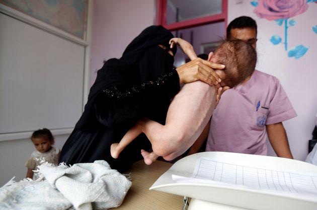 Una madre sujeta a su hijo malnutrido en