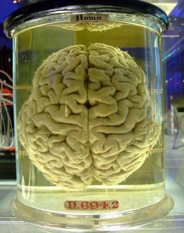 Cerebro humano conservado en