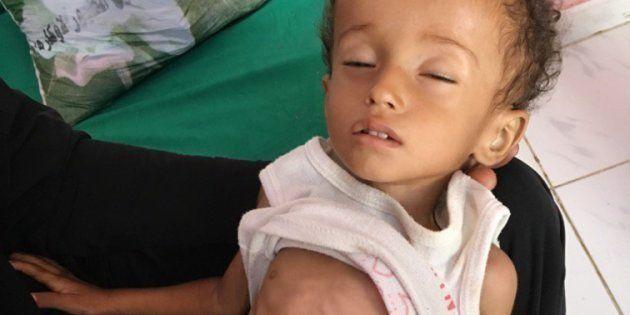 El pequeño Hussein Mazen Hussein, un niño malnutrido, cuya historia ha podido contar el equipo de la