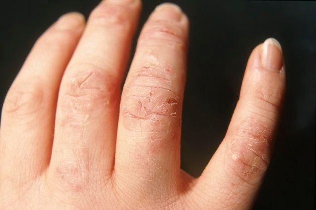 Dermatitis atópica: 11 preguntas (y respuestas) sobre esta enfermedad