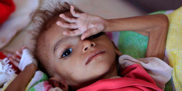 Un niño yemení malnutrido yace en una cama de un centro de tratamiento en