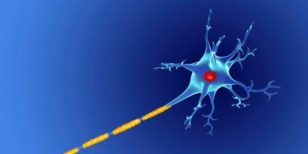 Descubierto el trastorno genético que está detrás de la esclerosis lateral amiotrófica